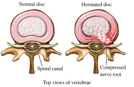 Normal disc vs bulging disc