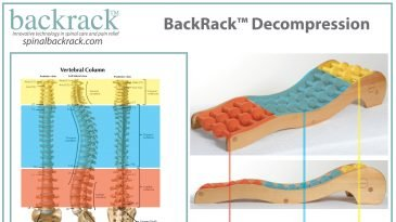 Eradicate the Causes of Back Pain with Backrack™ Device