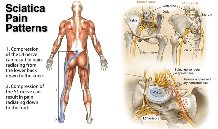 Sciatica back pain patterns