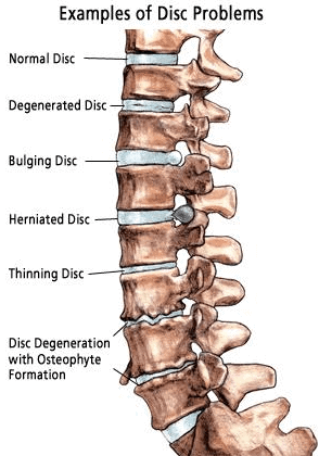 Spinal problems diagram