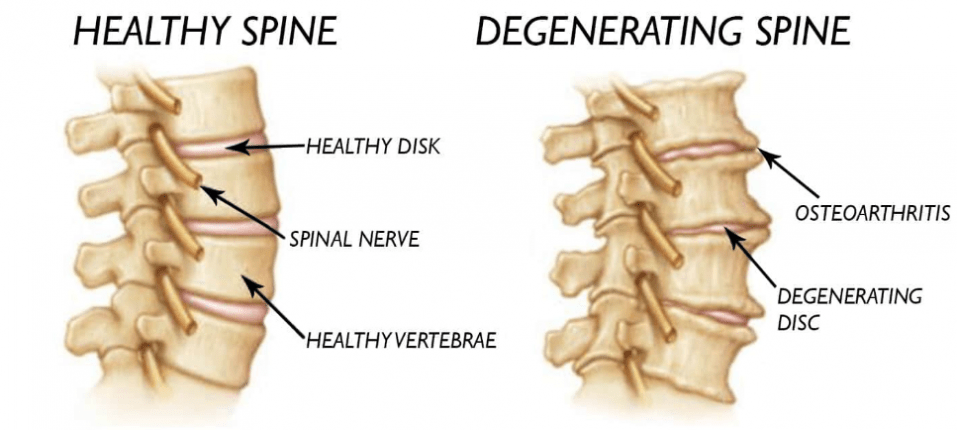 Healthy vs ageing spine.