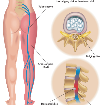 Sciatica pain treatment.