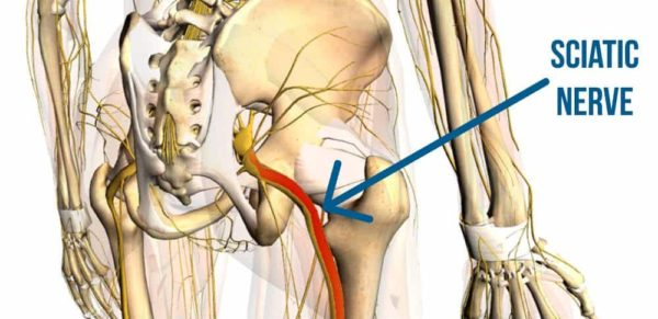 Leg pain Sciatic Nerve.