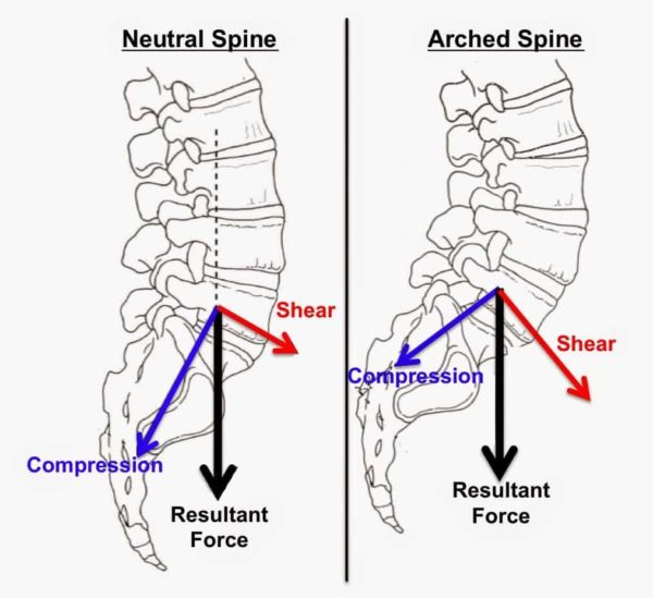 Neutral spine vs arched spine.