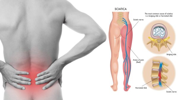 Sciatica pain relief and treatment.