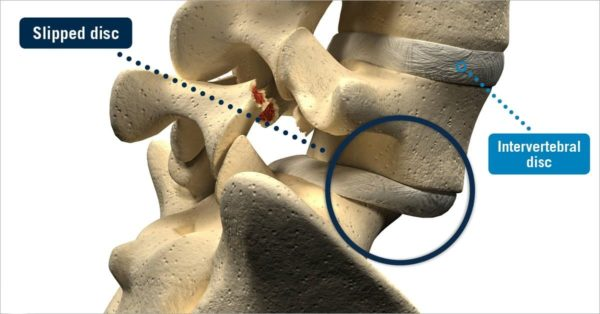 Slipped disc illustrated.