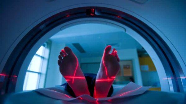 MRI scan of back.