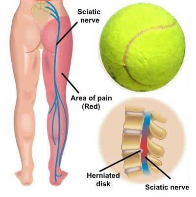 Sciatica pain due to playing tennis.
