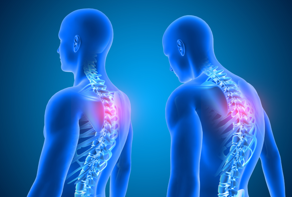 Stiff Neck Pinched Nerve for Beginners
