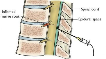 The Relationship between Labor Epidural and Back Pain!