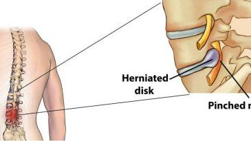 Treatment Options for a Compressed or Pinched Nerve