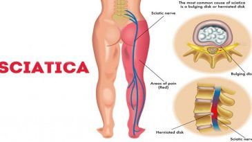Sciatica Nerve Pain Explained