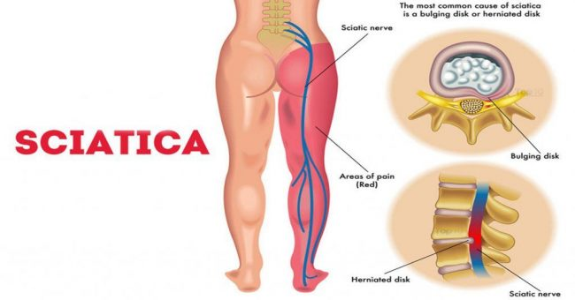 Causes of Sciatica and Sciatic Nerve Pain