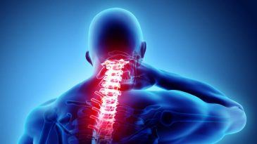 Cervical Kyphosis – Causes, Symptoms and Treatment