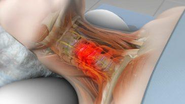 Cervical Radiculopathy Causes, Symptoms, Risk Factors and Treatment