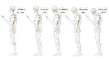 7 Signs of Poor Posture