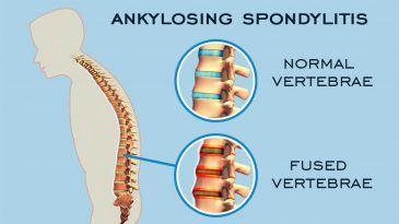 Ankylosing Spondylitis – Traditional vs. Advanced Treatment Modalities