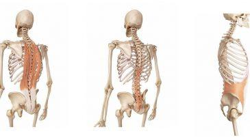Mechanical Back Pain Causes, Risk Factors, and Management
