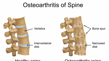 Spinal Osteoarthritis Causes, Symptoms and Treatment