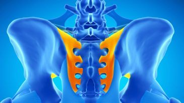 Sacroiliitis – Home Remedies vs. Therapies vs. Medical Treatment