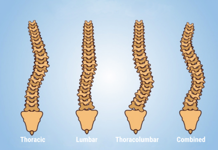 scoliosis types updated